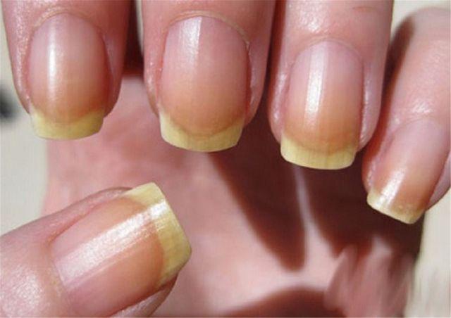 Деформация ногтей, чем лечить