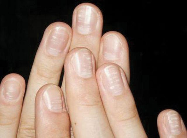 Как бороться с ребристыми и волнистыми ногтями
