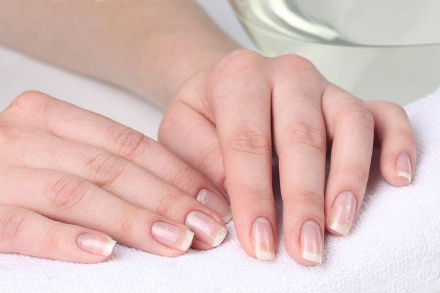 Ломкость ногтей – причины появления и методы лечения
