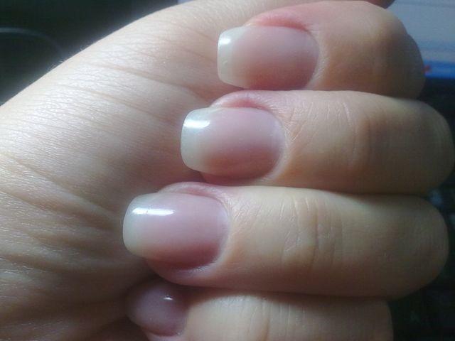 Ногти стали тонкими и расслаиваются