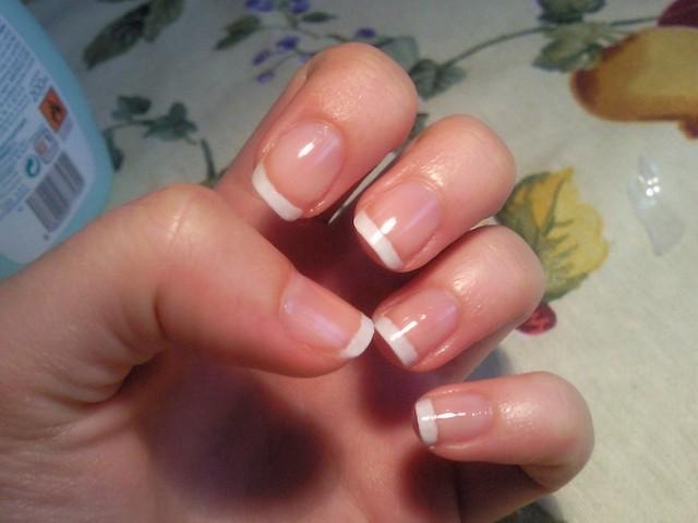 Ногти стали тонкими и расслаиваются. Что делать